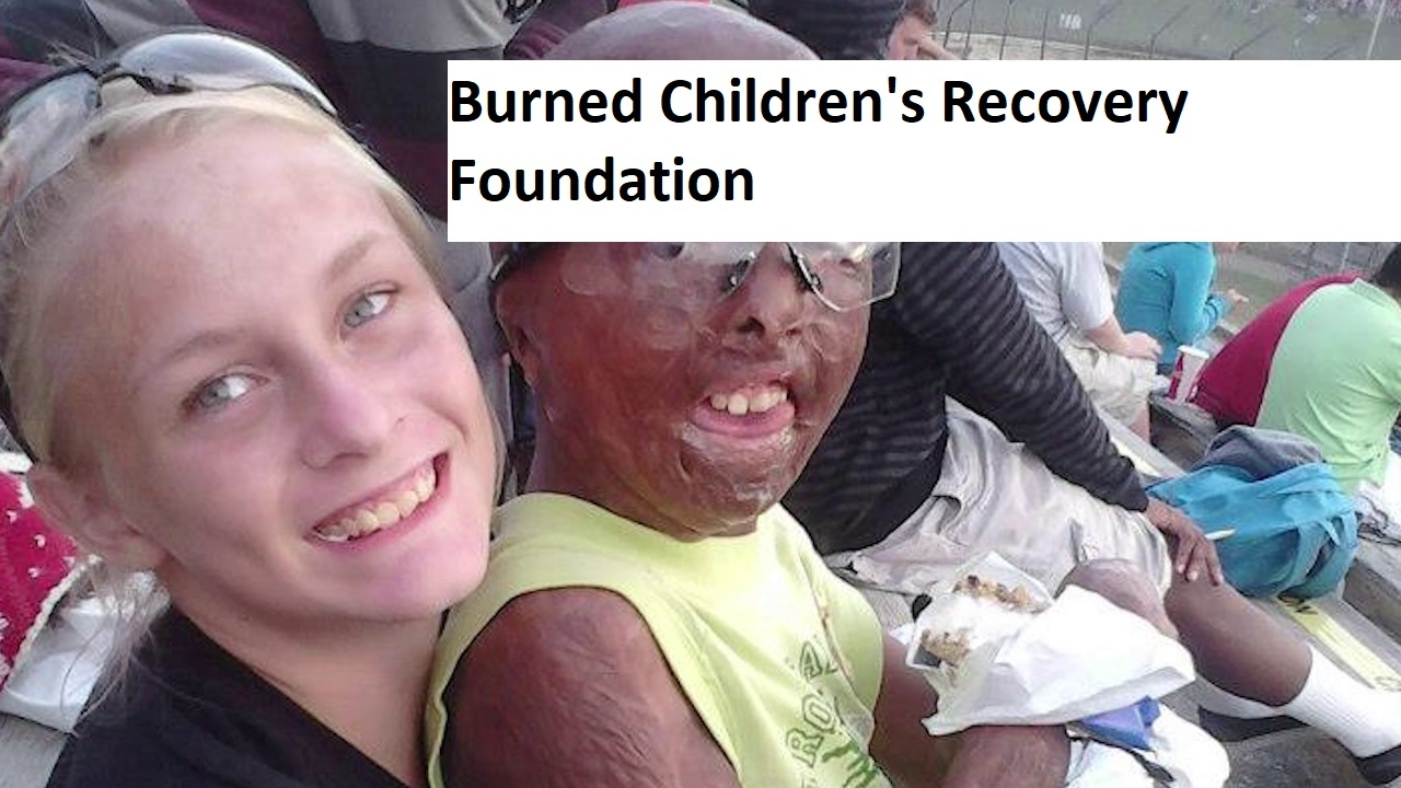 Children's Burn Foundation of Florida